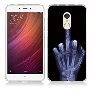 Funda Xiaomi Redmi Note 4-Fubaoda-Alta Calidad Serie de Hueso Artística, Gel de Silicona TPU, Amortigua los golpes, funda protectora para Xiaomi Redmi ...