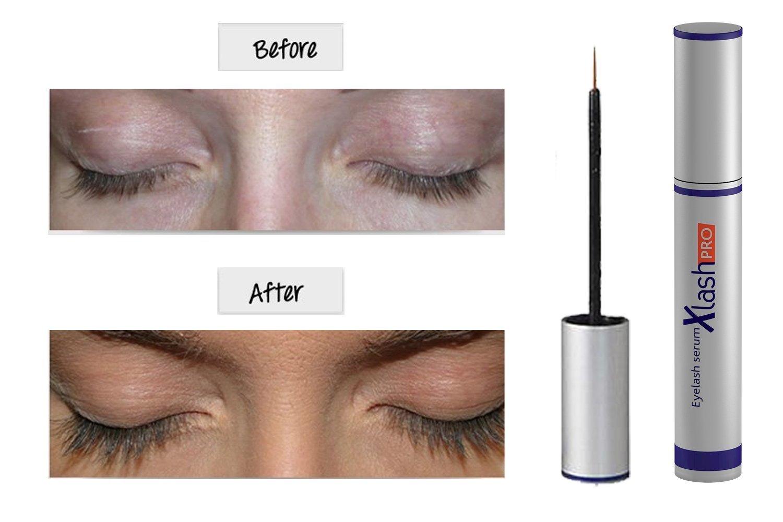 Amazon Xlash Pro Eyelash Serum 6ml Xlash Beauty