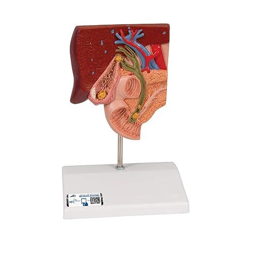 3B Scientific K26 Modelo de anatomía humana Modelo de Cálculo Biliar + software de anatomía gratuito - 3B Smart Anatomy: Amazon.es: Industria, empresas y ciencia