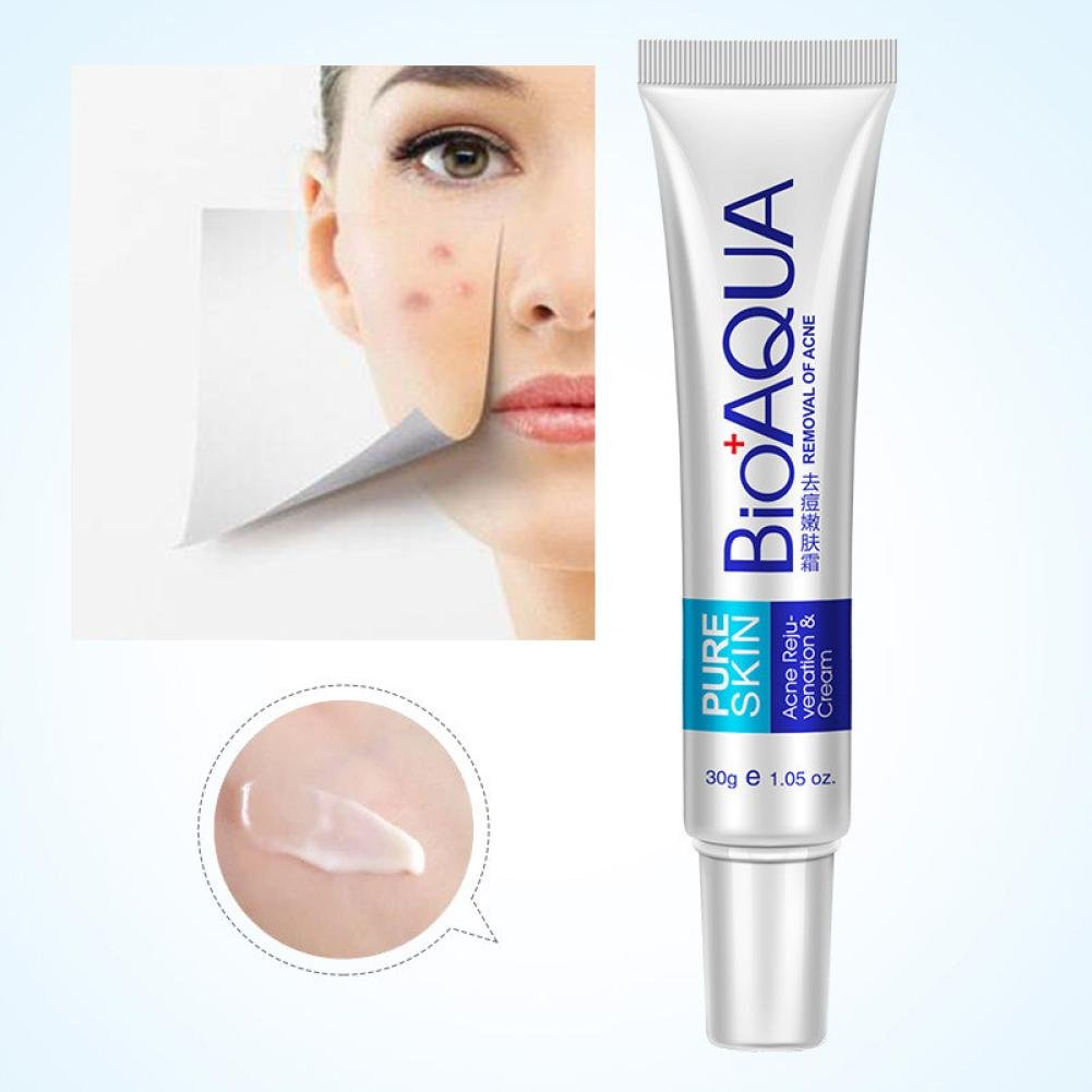 Removal Cream, Hometom Effective Face Skin Care Removal Cream Acne Spots Scar Blemish Marks Treatment (1 PC)
