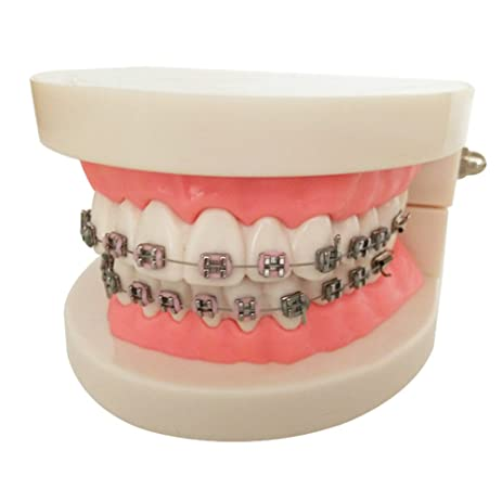 zorvo dental braces teeth model with brackets teach study adult typodont demonstration