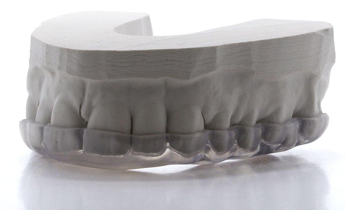 Custom Dental Night Guard for Teeth Grinding - Pro Teeth Guard. 365 Day 100% Money Back Guarantee. Size: Adult-Male. by Pro Teeth Guard (Image #3)
