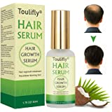 Hair Growth Serum, Hair Loss and Hair Thinning Treatment, Stops Hair Loss, Natural Herbal Essence,Thinning, Balding…