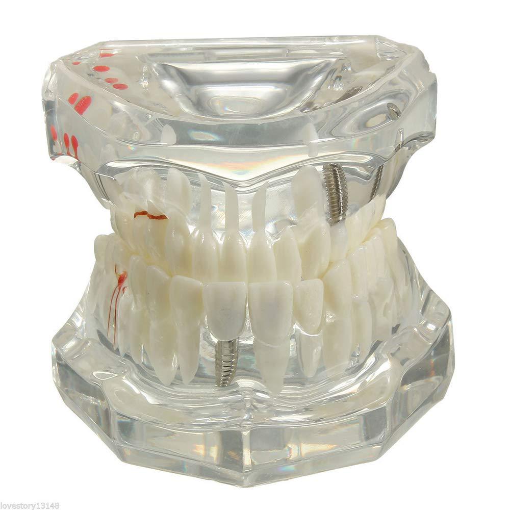 Dental Implant Model Teeth with Restoration Hot Bridge Tooth Dentist for Medical Science Dental Disease Teaching Study