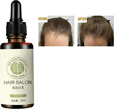Amazon Com Regrowth Serum Hair Care Essential Oil Repair The Existing Hair Blend Of Nutrients Aids Regrowth Of Damaged Hair Follicles 30ml Clothing