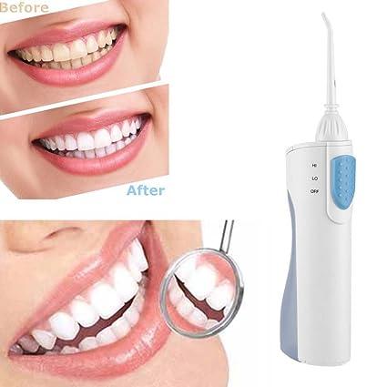 Irrigador Dental Portátil Sin Cable Oral Irrigator Floss Water Jet Para Viajes Y Uso En El