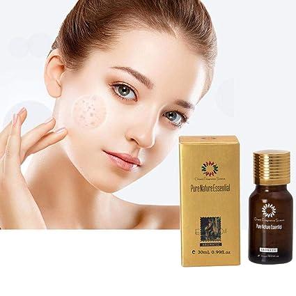 Ultra brighte Ning Spot Less Oil - Mejorar la piel Eliminar manchas oscuras Edad manchas Hyper de pigmento ation Fragrance Scar 30 ml: Amazon.es: Salud y ...