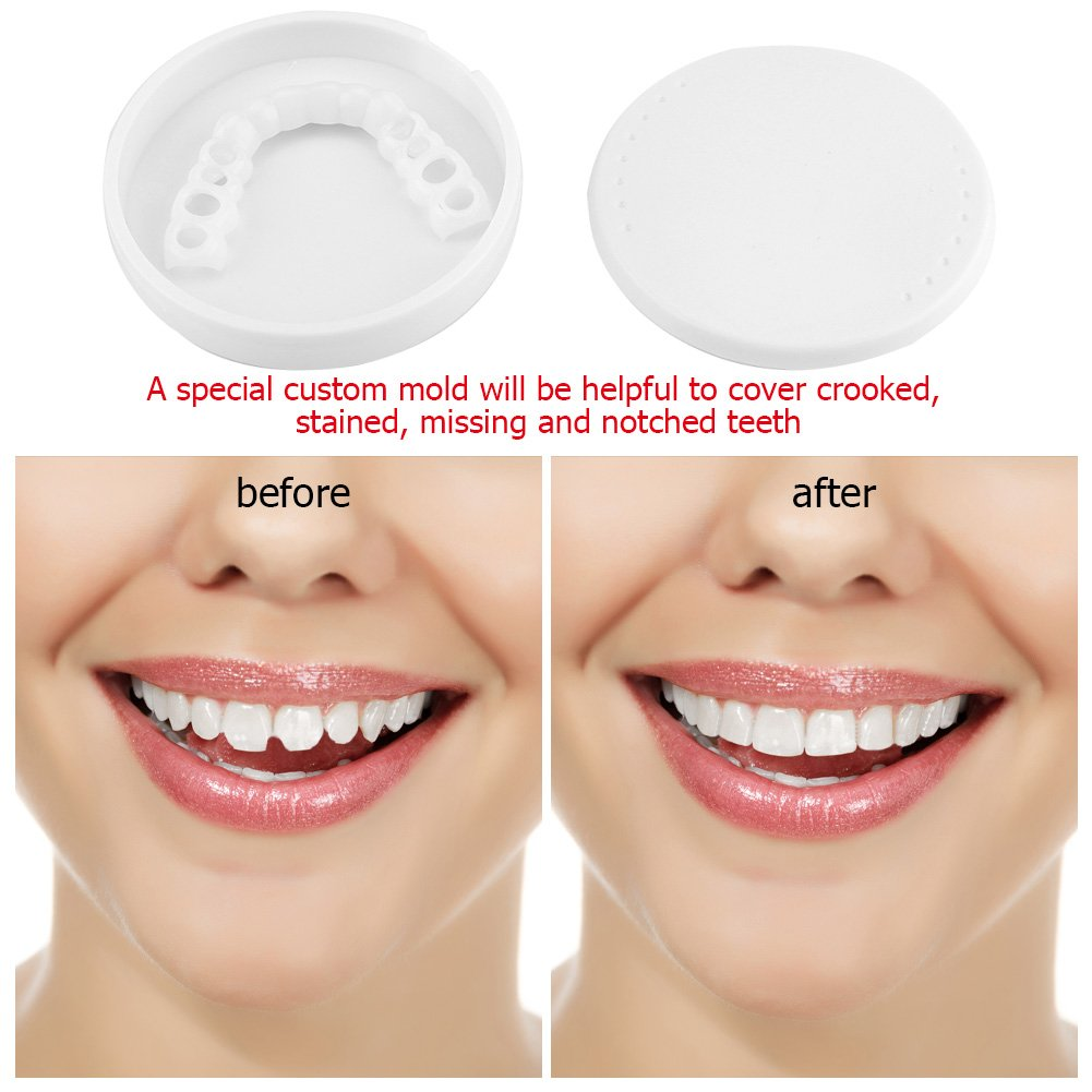 Upper Teeth Cover,Acogedor Teeth Cosmetic Whitening Denture,Teeth Braces Great Replacement Product with Storage Box,Cover Crooked, Stained, Missing and Notched Teeth.