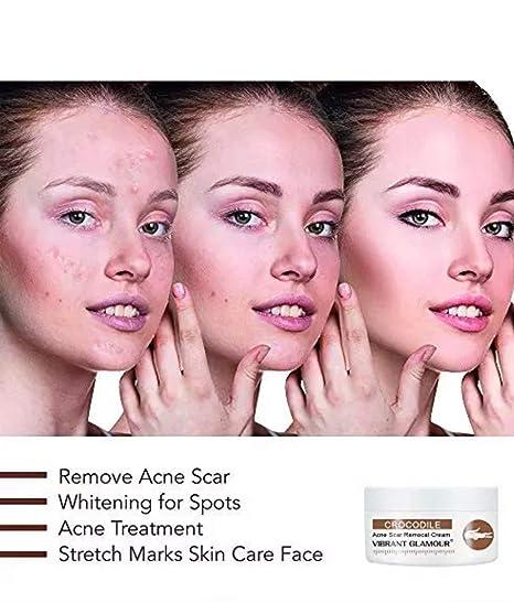 Amazon Com Crema De Eliminación De Cicatrices Vibrant Glamour Para Cicatrices Antiguas Estrías Para Mujeres Y Hombres Beauty