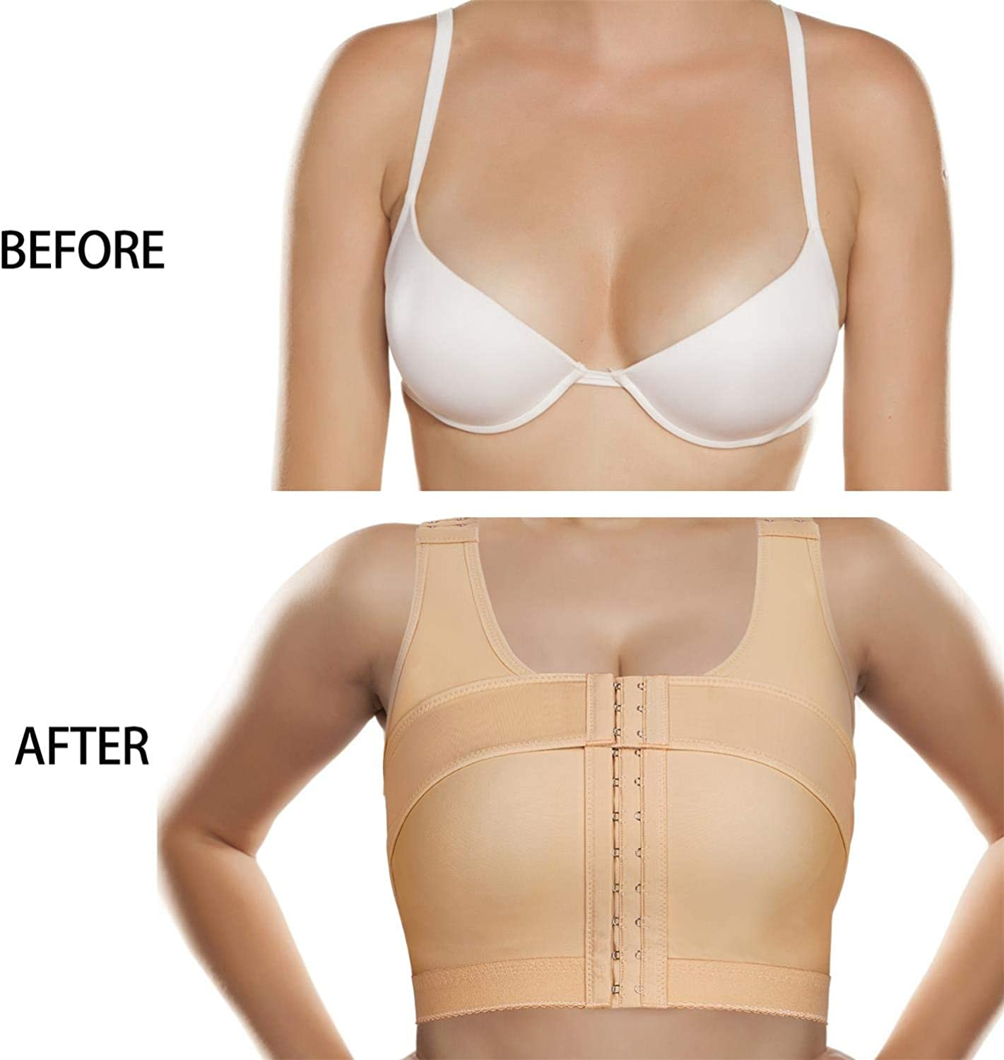 BRABIC Women's Front Closure Bra Post-Surgery Posture Corrector Shaper Tops with Breast Support Band: Clothing