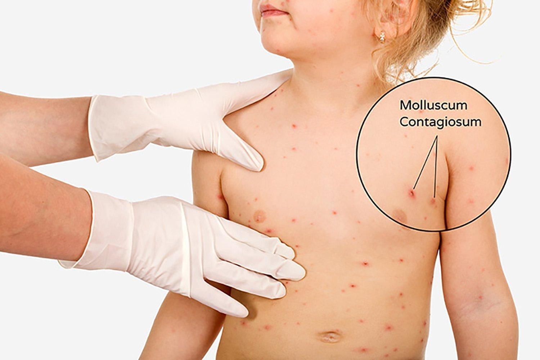 Amazon Com Naturasil For Molluscum 15 Ml Therapeutic Skin Care