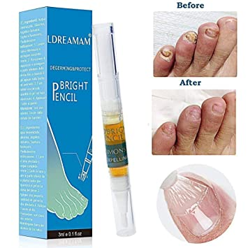 Amazon.com : Nail Fungus Treatment, Fungus Stop, Nail Antifungal ...