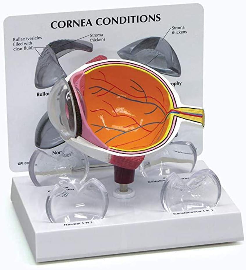 Accesorios de Aprendizaje Modelo de Enfermedad del oftalmoscopio Glaucoma Patología de cataratas Modelo de demostración de Chips Modelo de Globo Ocular