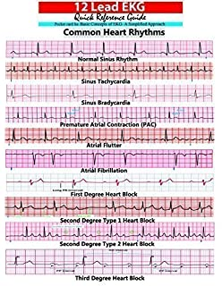 ECG Interpretation: An Incredibly Easy Pocket Guide (Incredibly ...
