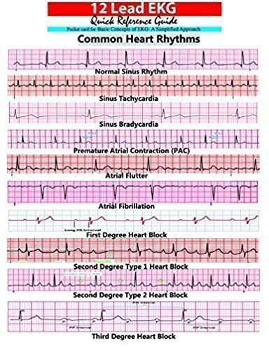 ekg pocket card aprn world 9781941004067 amazon com books rh amazon com