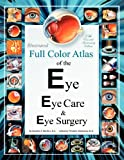 Illustrated Full Color Atlas of the Eye, Eye Care, and Eye Surgery, Stephen Gordon, 1475056052