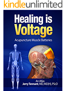 Healing is voltage the handbook kindle edition by jerry l healing is voltage acupuncture muscle batteries an atlas fandeluxe Choice Image