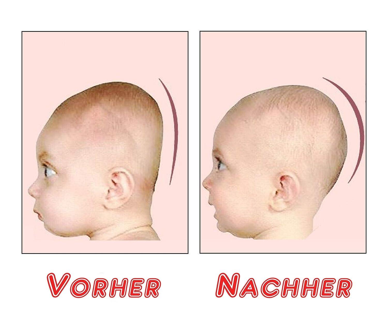 DAS ORIGINAL Orthop/ädisches Premium Babykissen gegen Kopf Verformung Plattkopf medizinisches /& sicheres Kopfkissen Baby Kissen S/äugling Neugeborene Anti Flachkopf-Syndrom Memory Foam Plagiozephalie