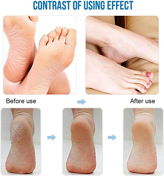 Hard Skin Remover,Proffessinal Waterproof Electric Foot File with LED Power Display Come with 3 Roller Heads and 1 Cleaning Brush