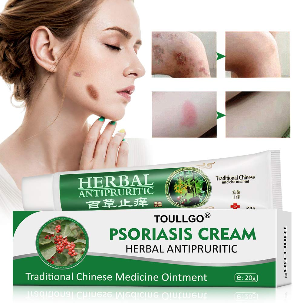 Image result for Psoriasis Cream Skin Care Treatment