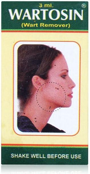 warts treatment ayurvedic