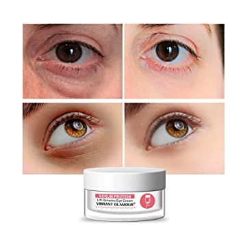 Amazon Com Amoustore Best Eye Cream For Dark Circles And
