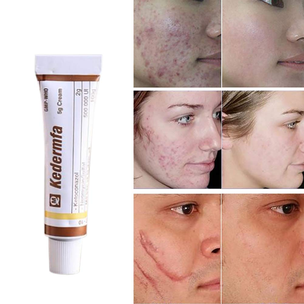 Vietnam Scar Removal Cream Acne & Spots Treatment Anti-Itch Burn, Scald Scar Removal Ointment by RedDhong (Image #1)