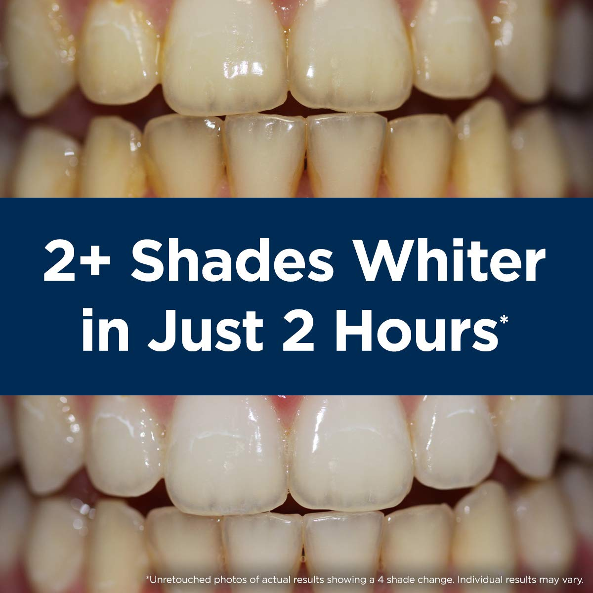 Rembrandt 2 Hour Teeth Whitening Treatment by Rembrandt (Image #5)