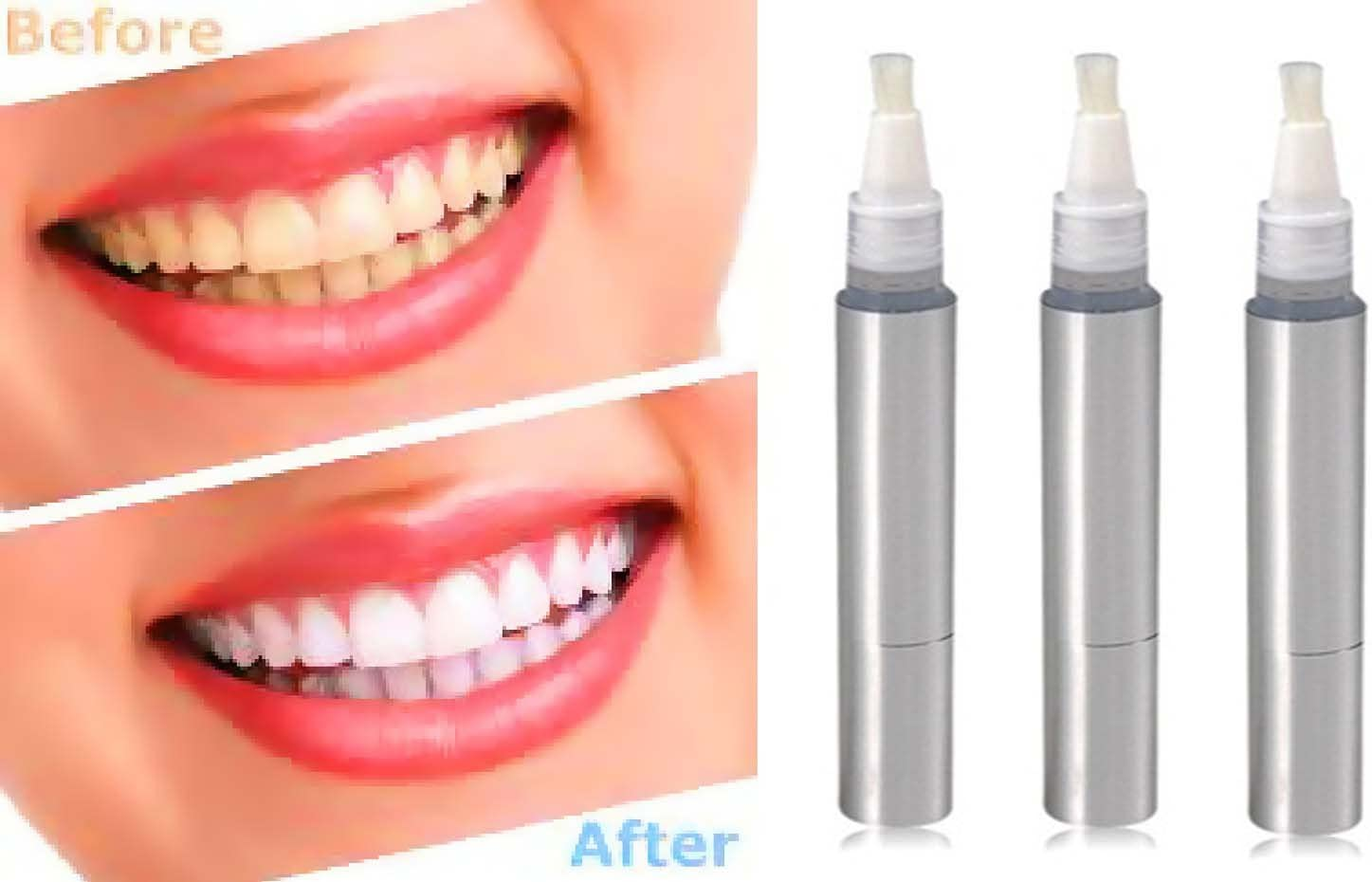 Amazon Com Teeth Whitening 3 Pack Teeth Whitening Pen Set Is The