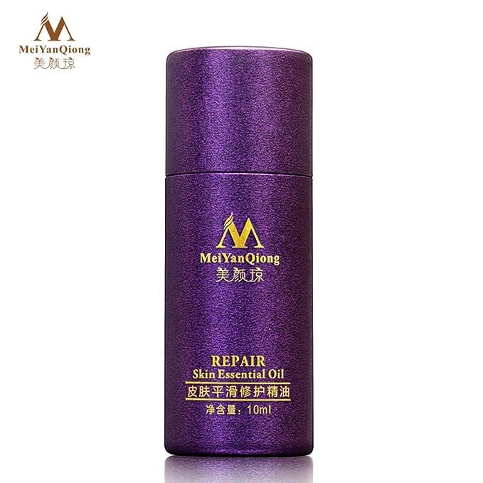 Elenxs Nueva Scar Skin Repair Esencial Esencia de la Piel Aceite de Lavanda Natural Care Eliminar el acné de la quemadura del Punto Marcas 10ml Suero: ...