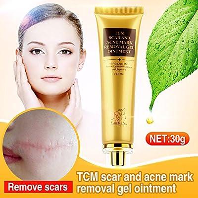 body acne scar removal cream