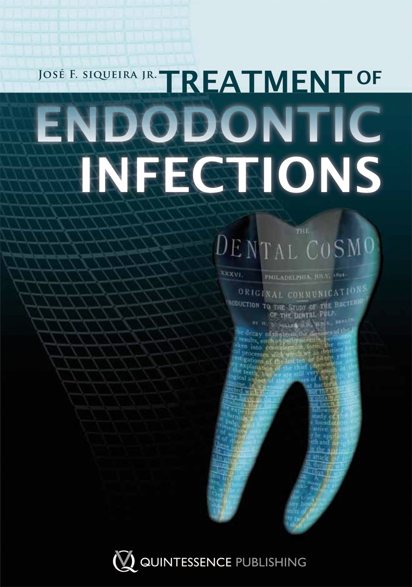 Treatment of Endodontic Infections by Quintessence Pub Co