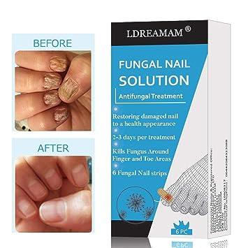 Amazon.com: Nail Fungus,Antifungal Nail Treatment,Toenail Fungus ...