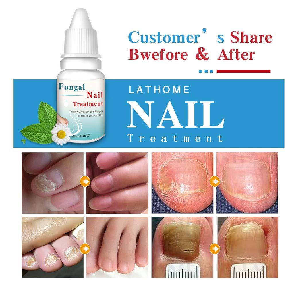 2 bolígrafos de reparación de uñas con tratamiento antifúngica ...