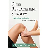 Knee Replacement Surgery, A Patient's Guide: Before, During & After