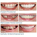Hoshell 1 Pair Temporary Smile Comfort Fit Cosmetic Teeth Denture Teeth Cosmetic Sticker