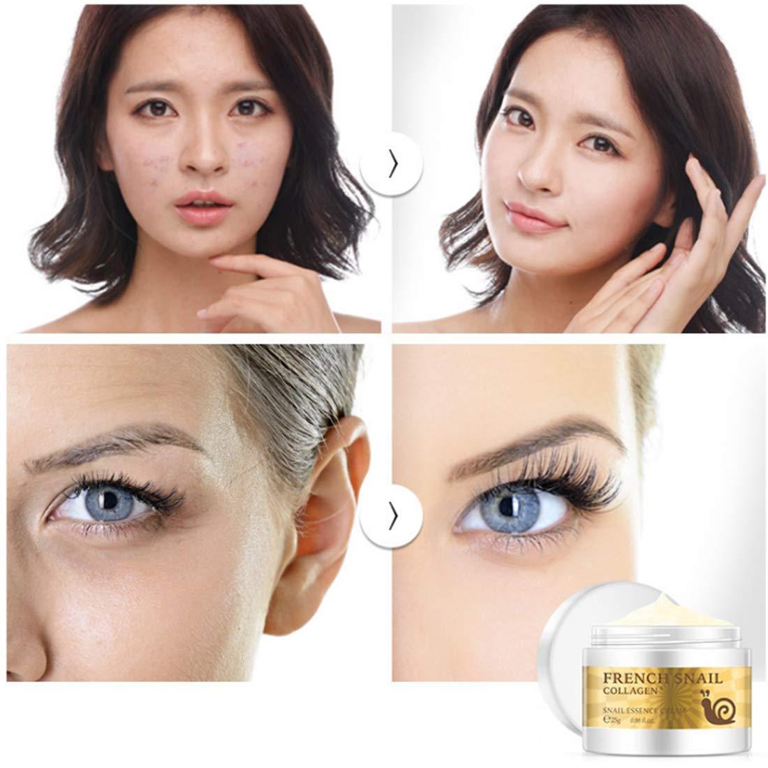 Loweryeah Snail Repair Anti-aging Cream 25g Collagen Moisturizing Nourish Repair Damaged Face Care Hyaluronic Acid Cream by Loweryeah (Image #4)