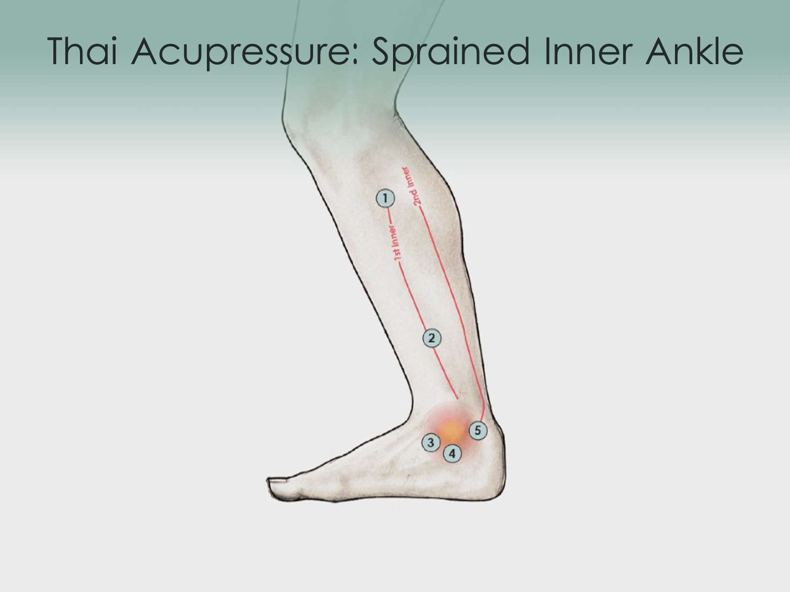 Treatment Routine 53 - Sprained Inner Ankle by