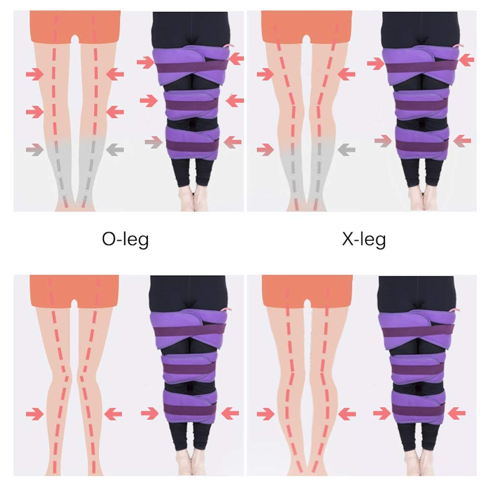 Leg Orthotics For O-legged X-legged Adult Children, Three-in-one, Airbag Compression (purple/blue) (Color : Purple) by Sharon (Image #3)