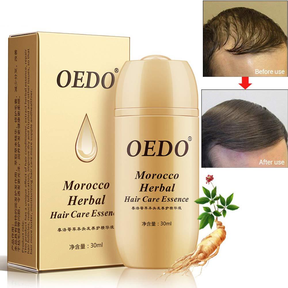 Shouhengda Morocco Herbal Ginseng Hair Care Essence Treatment For Men And Women Hair Loss Fast Powerful Hair Growth Serum Repair Hair Root