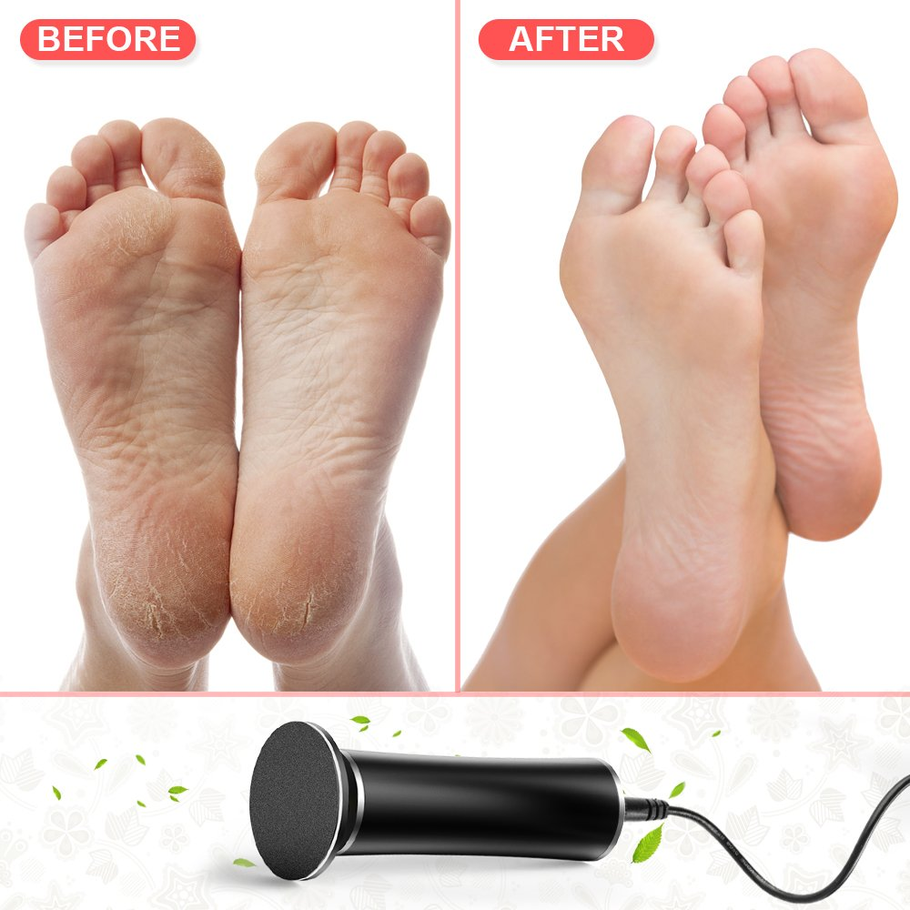 Aunote Electric Callus Remover,Professoinal Pedicure Tools Foot File(Speed Adjustable) Most Powerful Replacement Sanding Disk Best Tool Kit For Women/Men Remove Dead,Cracked Skin,Hard,Thick Callus by AUNOTE (Image #7)