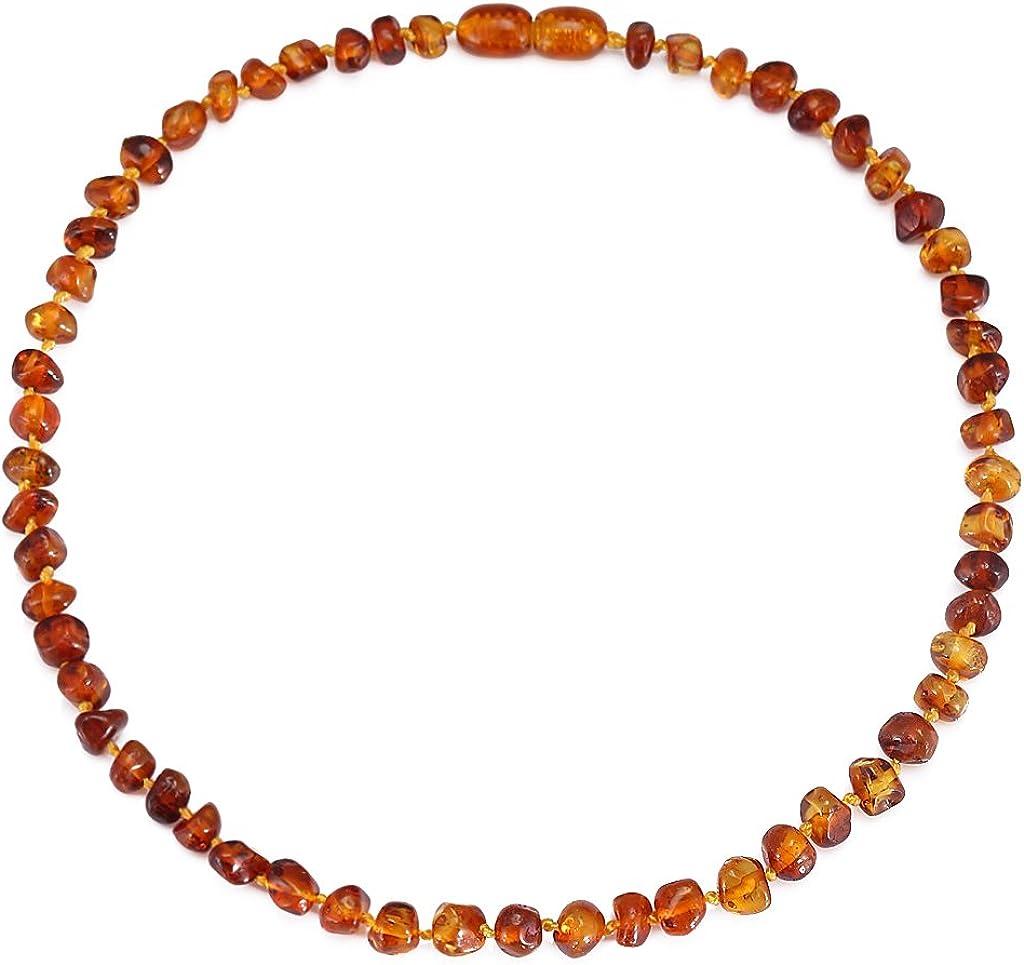 Cici's Story Collar de Ambar(Unisex) - 3 tamaños - 4 Colores Certificado Ámbar El Collar auténtico báltico