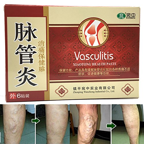 18Pcs Varicose Veins Cure Patch Vasculitis Natural Solution Chinese Herbal Treatment Mai Guan Yan Acid Bilges Itching