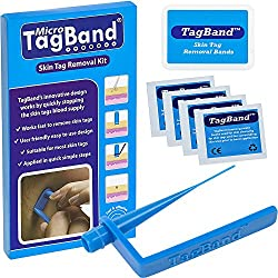 TagBand's patent pending design is the only skin tag removal device available on the marketplace with its clever, innovative design allowing for quick and safe skin tag removal. TagBand works by stopping the skin tags blood supply and results can be ...