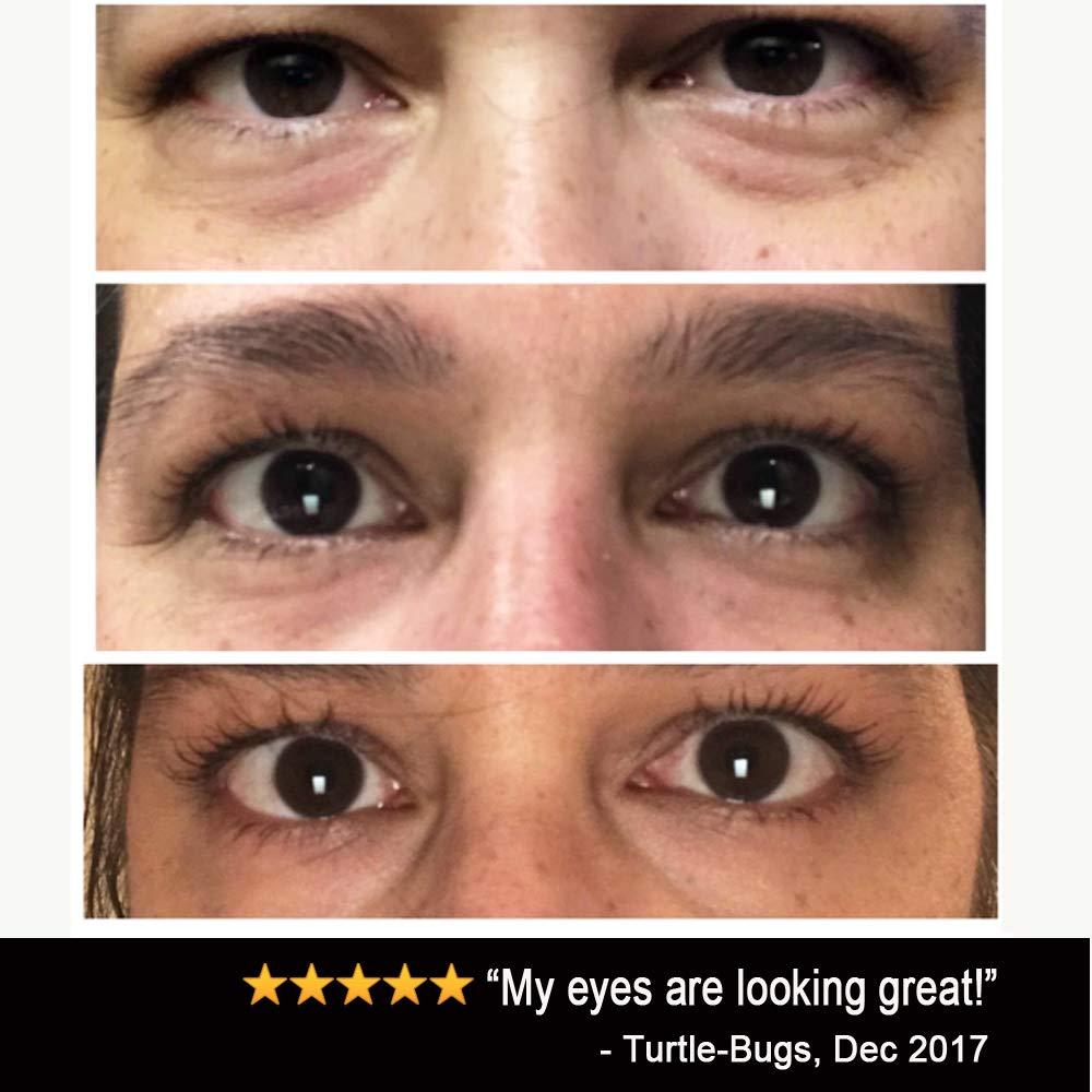 Eye Cream Moisturizer (1 7oz) 94% Natural Anti Aging Skin Care