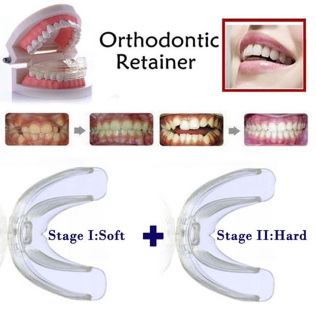 Amazon teeth straightening orthodontic retainer braces smile high tech dental orthodontic braces transparent soft and hard for adults teeth straightening solutioingenieria Image collections