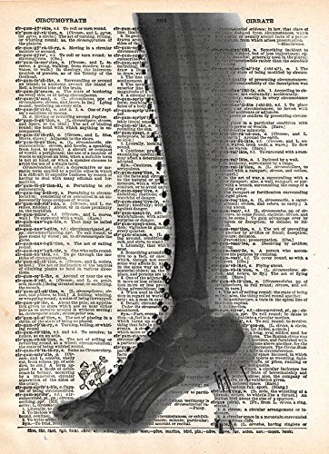 High heel boot x ray artwork, victorian steampunk style printed on old dictionary page Printed X-ray