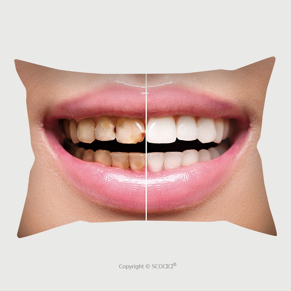 Custom Satin Pillowcase Protector Woman Teeth Before And After Dental Treatment Teeth Whitening Happy Smiling Woman Dental Health 443519569 Pillow Case Covers Decorative
