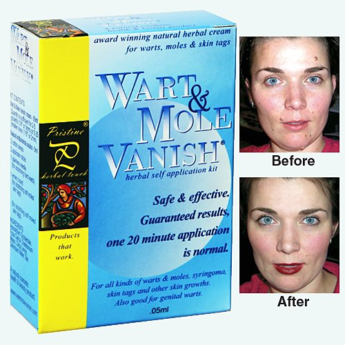 Wart Mole VANISH Skin Tag Remover 20 minute application N...