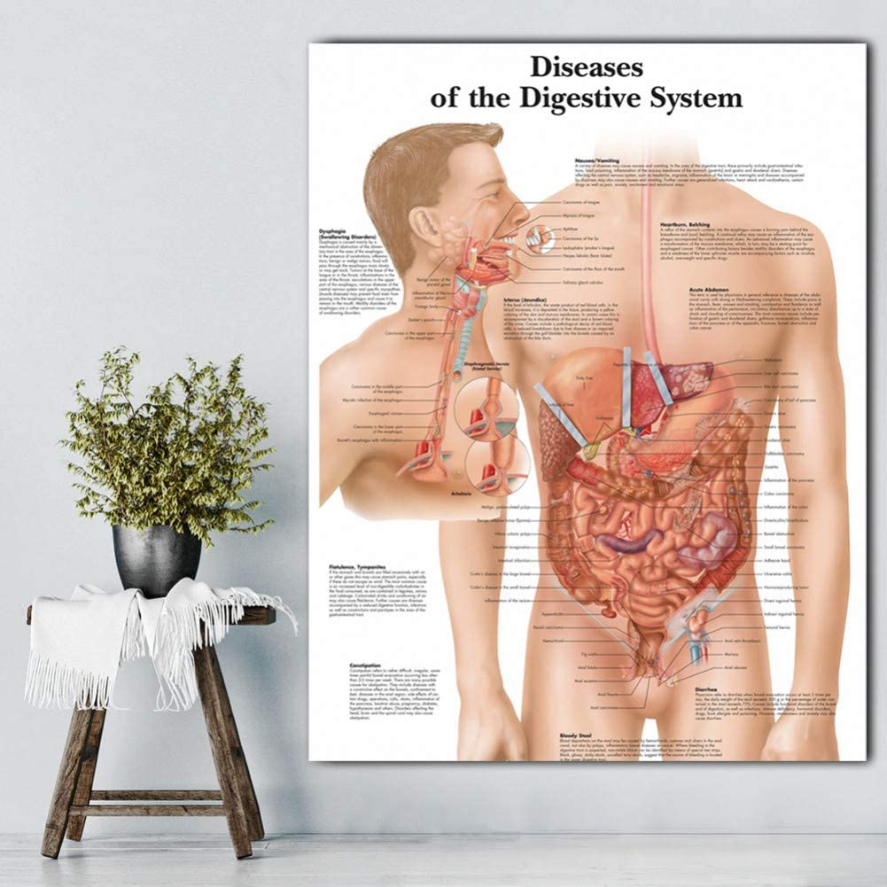 GUDOJK Decorative Paintings Digestive System Pictures Anatomical Charts Posters Anatomy Charts Diseases Wall Pictures for Medical Education Doctors-60x80cm